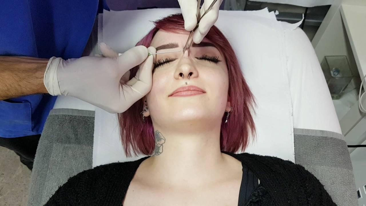 nose bridge piercing procedure