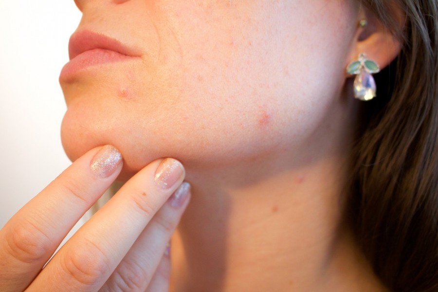cure acne with oil