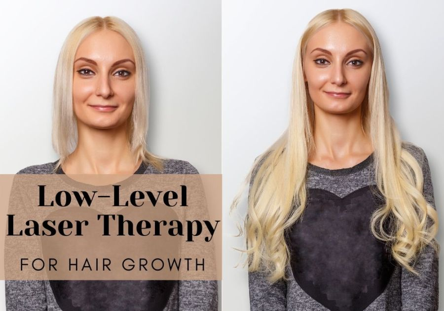 Low-Level Laser Therapy for Hair Growth