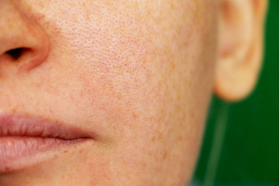 natural treatments for large pores