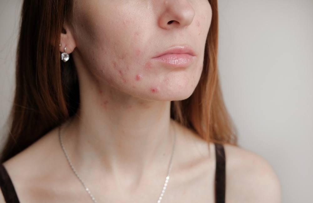 Help Your Acne Go Away
