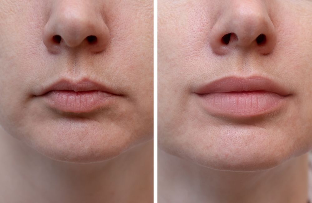 lip filler before and after small lips