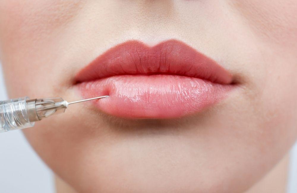 most popular lip fillers