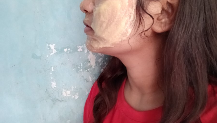 diy face yogurt gramflour mask