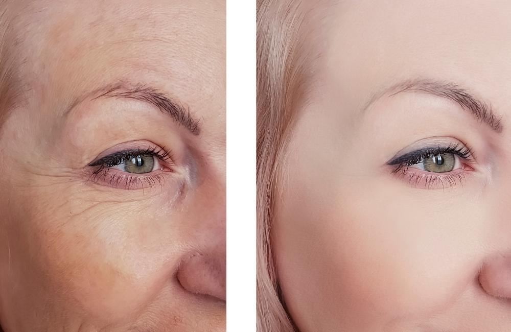 under eye wrinkles natural treatment
