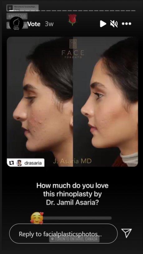 FacialPlasticsPhotos on Instagram